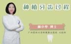 种植牙齿过程
