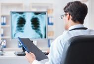 肺癌放��化���^�e