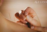 �灸后疼痛加重的原因