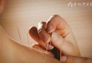 颈椎病针灸后注意事项