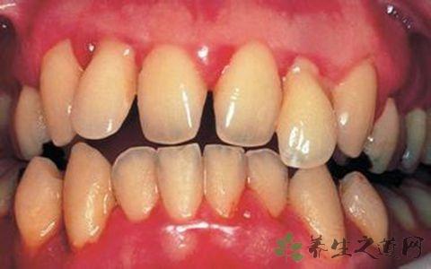 牙龈发炎不能吃