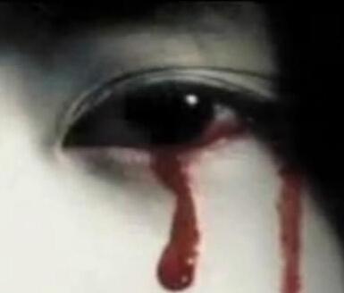 流汗时眼睛嘴巴流血
