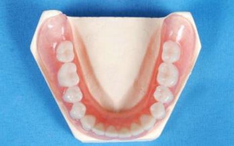 怎样维护假牙的清洁