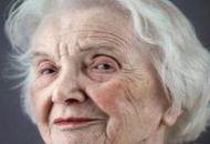 老年斑形成的原因